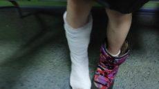 В Смоленске девочка сломала ногу в батутном центре