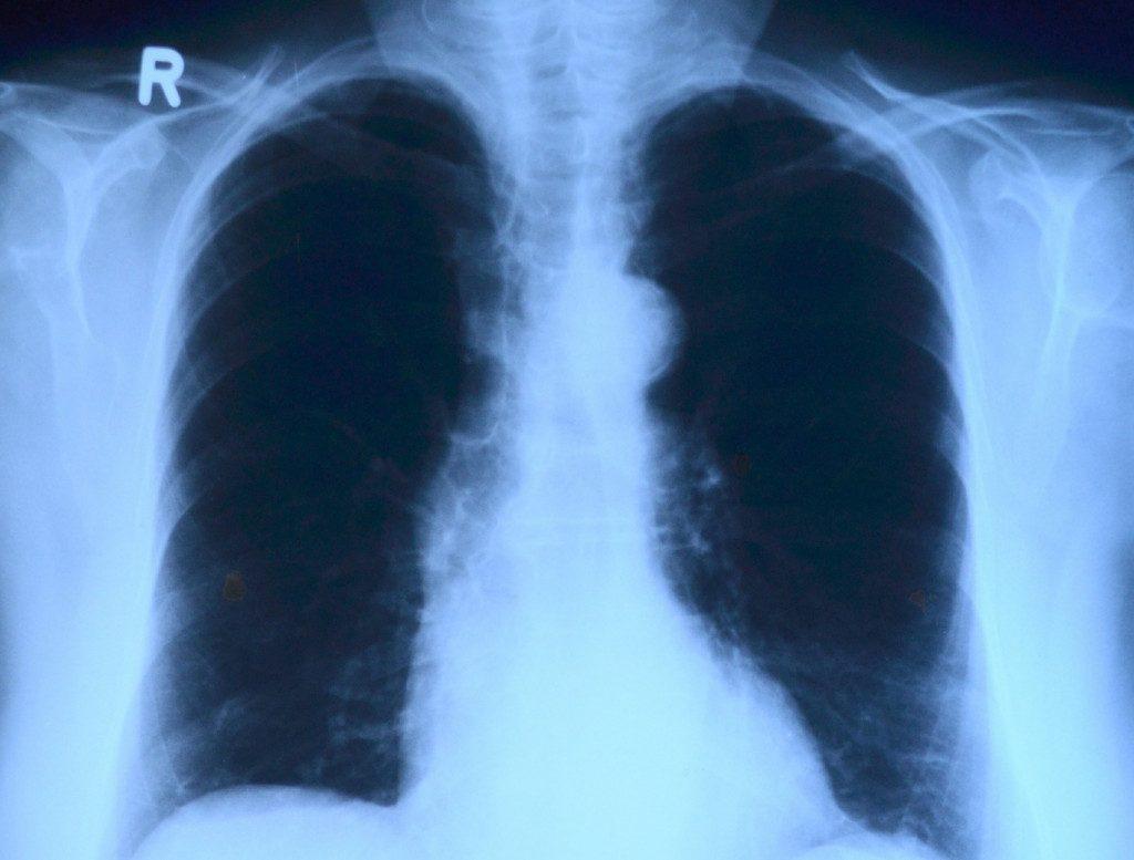 рентгенография, снимок, лёгкие
