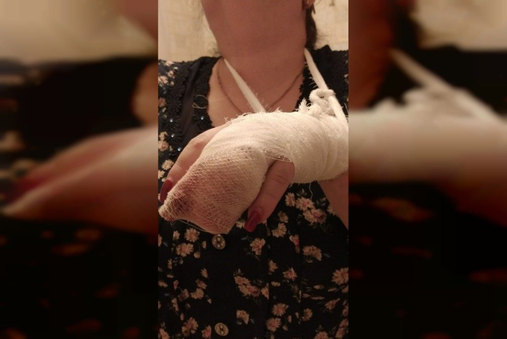 оторван палец