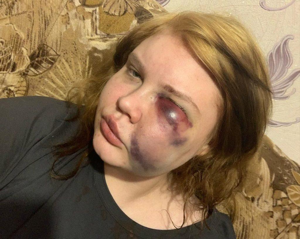 Анна Никитина, жертва избиения в Рославле (фото instagram.com _.nikitina._)